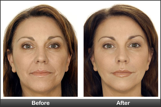 Botox & Fillers before-after